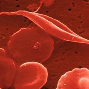 o-que-e-anemia-falciformeuntit